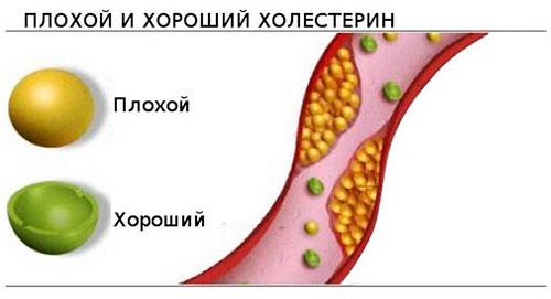 холестерина