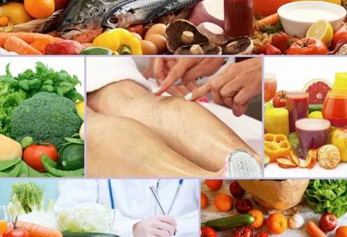 Принципы правильного питания при варикозе вен на ногах